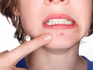 As Melhores Soluções Naturais Para Eliminar Acne